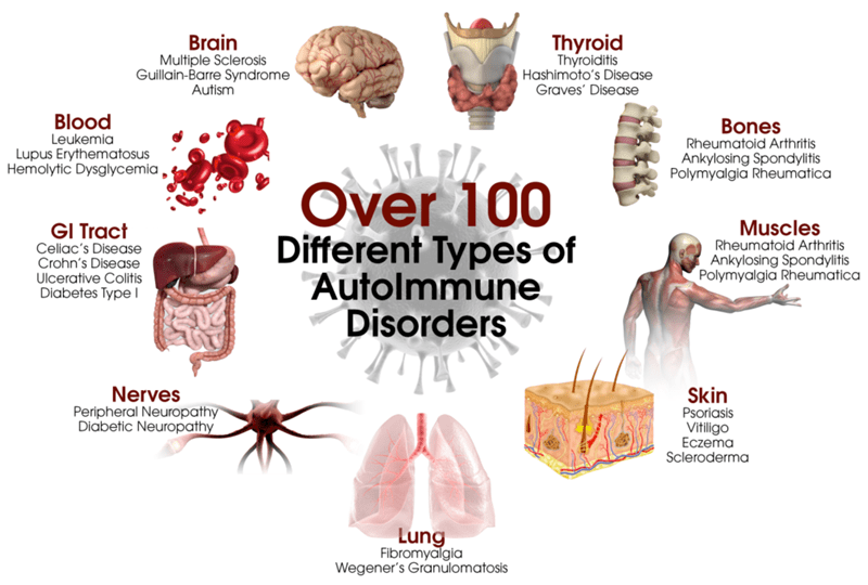 Autoimmune Disease, Causes and Treatments